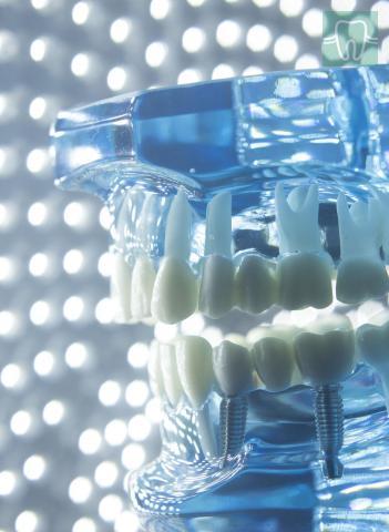 Implantologie Sector 4 - Cabinet stomatologic